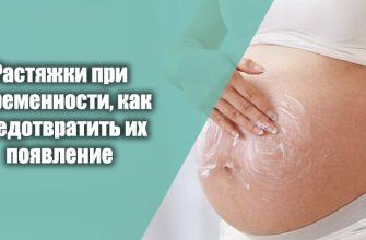 растяжки при беременности, как предотвратить их появление
